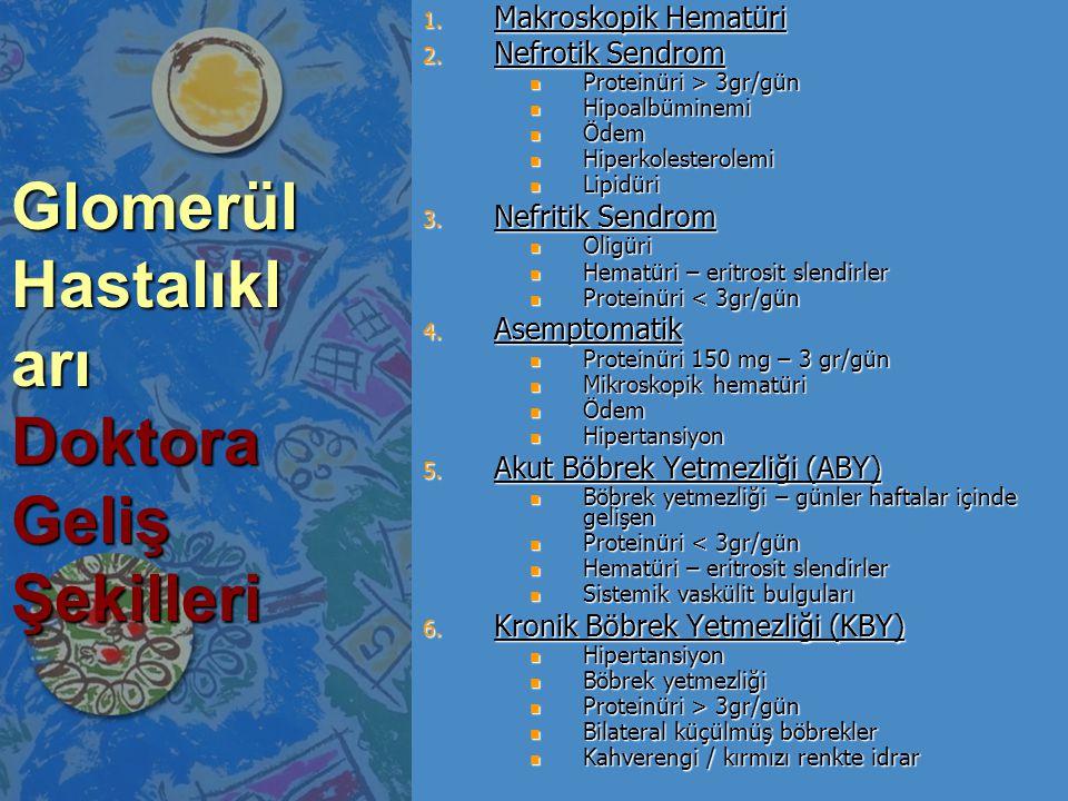 Glomerül Hastalıkl arı Doktora Geliş Şekilleri 1.Makroskopik Hematüri 2.