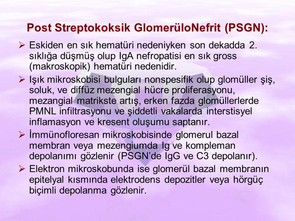 Post Streptokoksik GlomerüloNefrit (PSGN):  Eskiden en sık hematüri nedeniyken son dekadda 2.