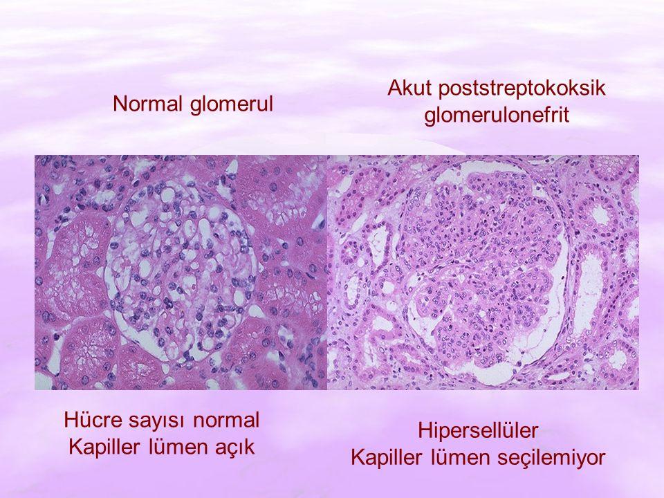Normal glomerul Akut poststreptokoksik glomerulonefrit Hücre sayısı normal Kapiller lümen açık Hipersellüler Kapiller lümen seçilemiyor