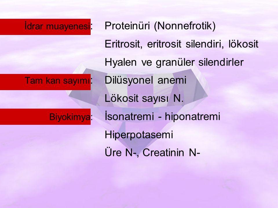 İdrar muayenesi :Proteinüri (Nonnefrotik) Eritrosit, eritrosit silendiri, lökosit Hyalen ve granüler silendirler Tam kan sayımı :Dilüsyonel anemi Lökosit sayısı N.