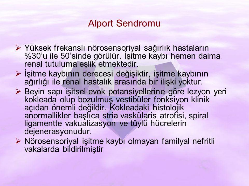 Alport Sendromu  Yüksek frekanslı nörosensoriyal sağırlık hastaların %30'u ile 50'sinde görülür.