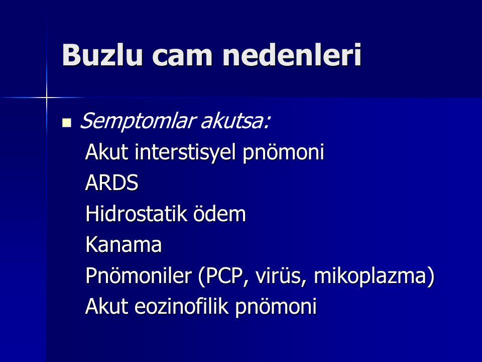 Buzlu cam nedenleri Semptomlar akutsa: Akut interstisyel pnömoni ARDS Hidrostatik ödem Kanama Pnömoniler (PCP, virüs, mikoplazma) Akut eozinofilik pnö