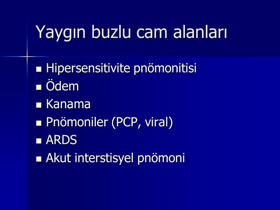 Yaygın buzlu cam alanları Hipersensitivite pnömonitisi Hipersensitivite pnömonitisi Ödem Ödem Kanama Kanama Pnömoniler (PCP, viral) Pnömoniler (PCP, v
