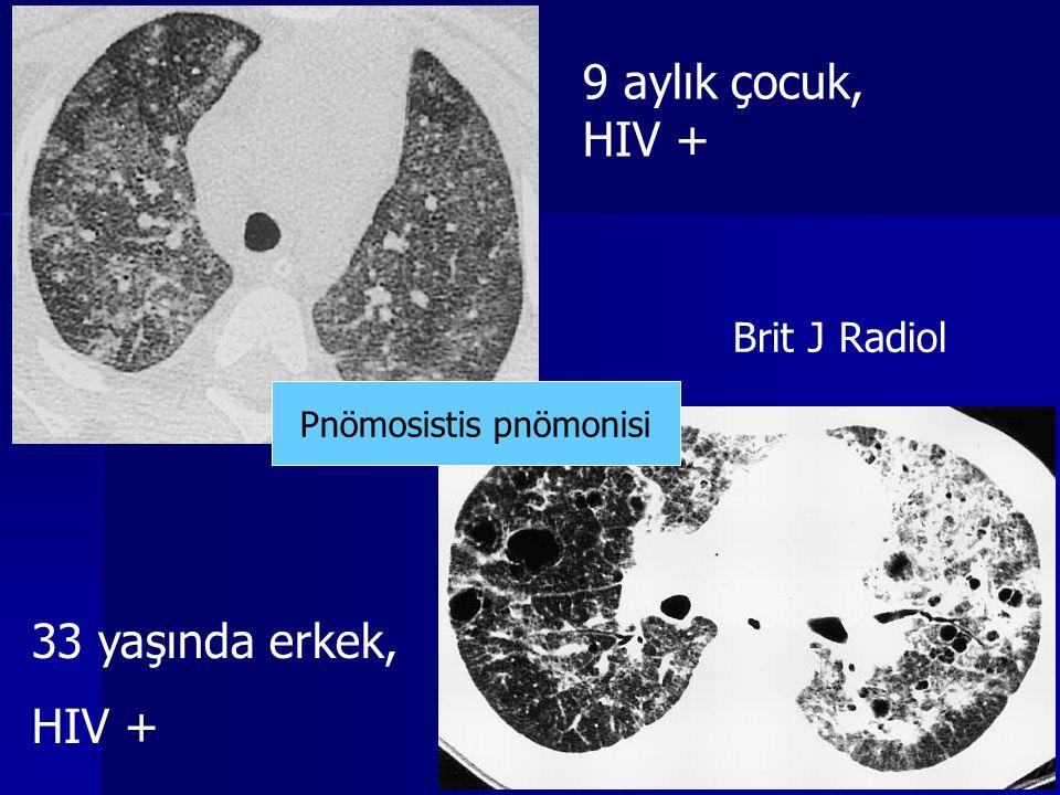 9 aylık çocuk, HIV + 33 yaşında erkek, HIV + Brit J Radiol Pnömosistis pnömonisi
