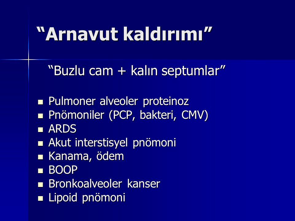 """""""Arnavut kaldırımı"""" """"Buzlu cam + kalın septumlar"""" Pulmoner alveoler proteinoz Pulmoner alveoler proteinoz Pnömoniler (PCP, bakteri, CMV) Pnömoniler (P"""