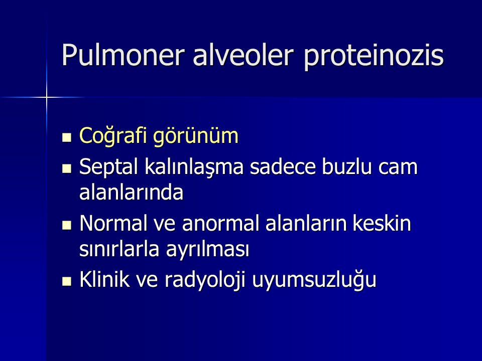Pulmoner alveoler proteinozis Coğrafi görünüm Coğrafi görünüm Septal kalınlaşma sadece buzlu cam alanlarında Septal kalınlaşma sadece buzlu cam alanla