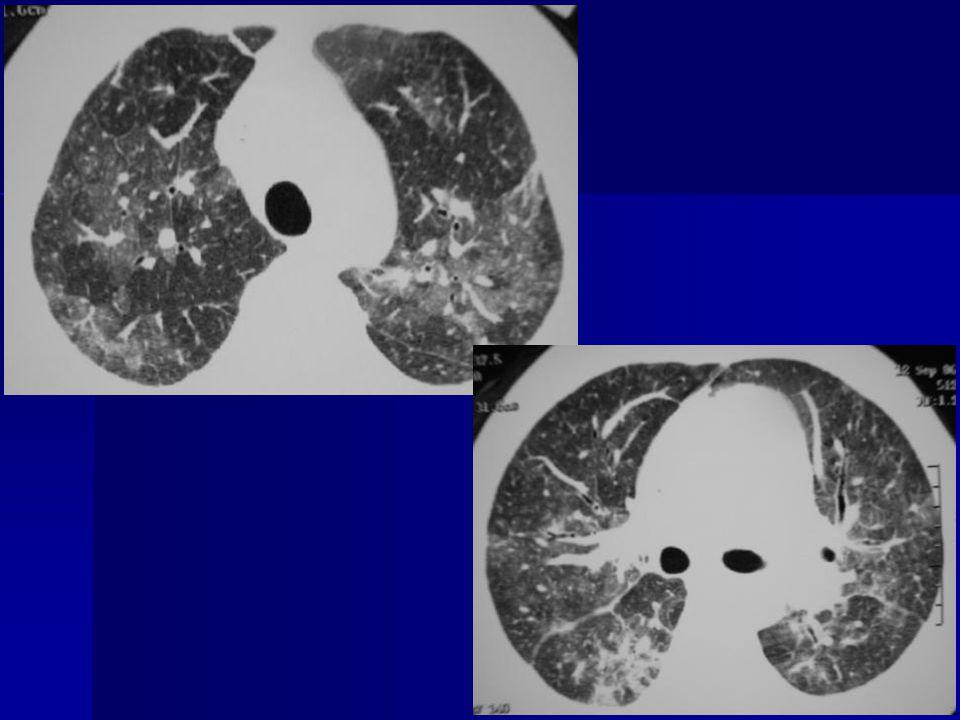Arnavut kaldırımı Buzlu cam + kalın septumlar Pulmoner alveoler proteinoz Pulmoner alveoler proteinoz Pnömoniler (PCP, bakteri, CMV) Pnömoniler (PCP, bakteri, CMV) ARDS ARDS Akut interstisyel pnömoni Akut interstisyel pnömoni Kanama, ödem Kanama, ödem BOOP BOOP Bronkoalveoler kanser Bronkoalveoler kanser Lipoid pnömoni Lipoid pnömoni