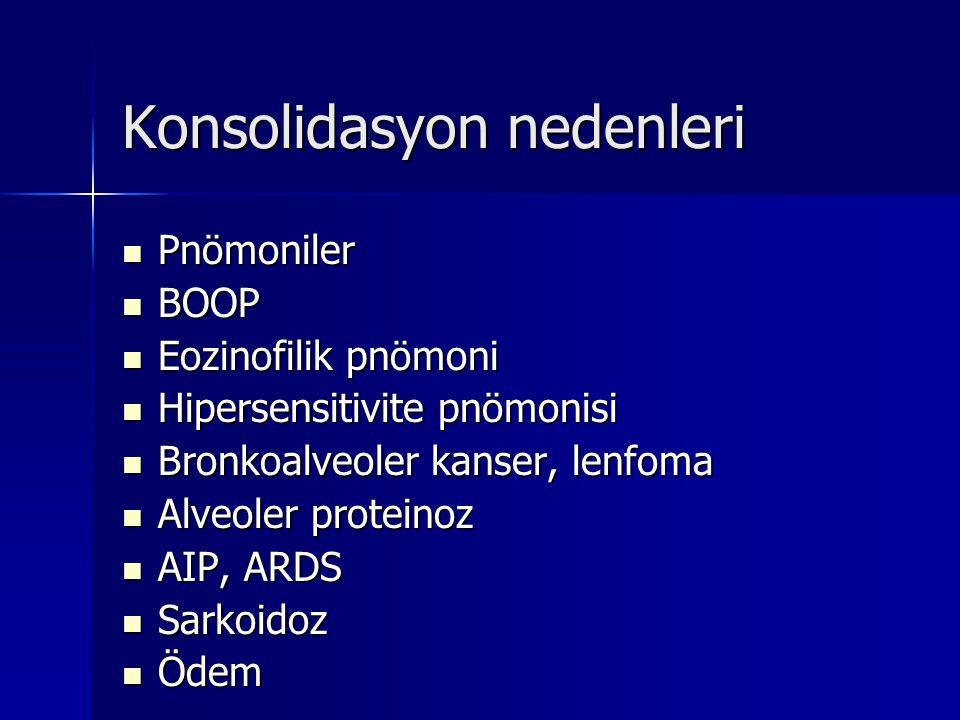 Konsolidasyon nedenleri Pnömoniler Pnömoniler BOOP BOOP Eozinofilik pnömoni Eozinofilik pnömoni Hipersensitivite pnömonisi Hipersensitivite pnömonisi