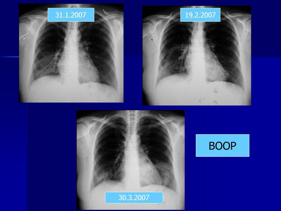 31.1.200719.2.2007 30.3.2007 BOOP