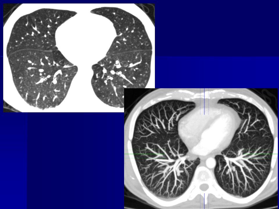 Pulmoner venooklüzif hastalık Pulmoner hipertansiyon –Geniş santral pulmoner arterler –Geniş sağ kalp boşlukları Akciğer ödemi bulguları –Buzlu cam (sentrilobüler / yaygın ) –Septal kalınlaşmalar –Plevral effüzyon Normal genişlikte sol kalp boşlukları