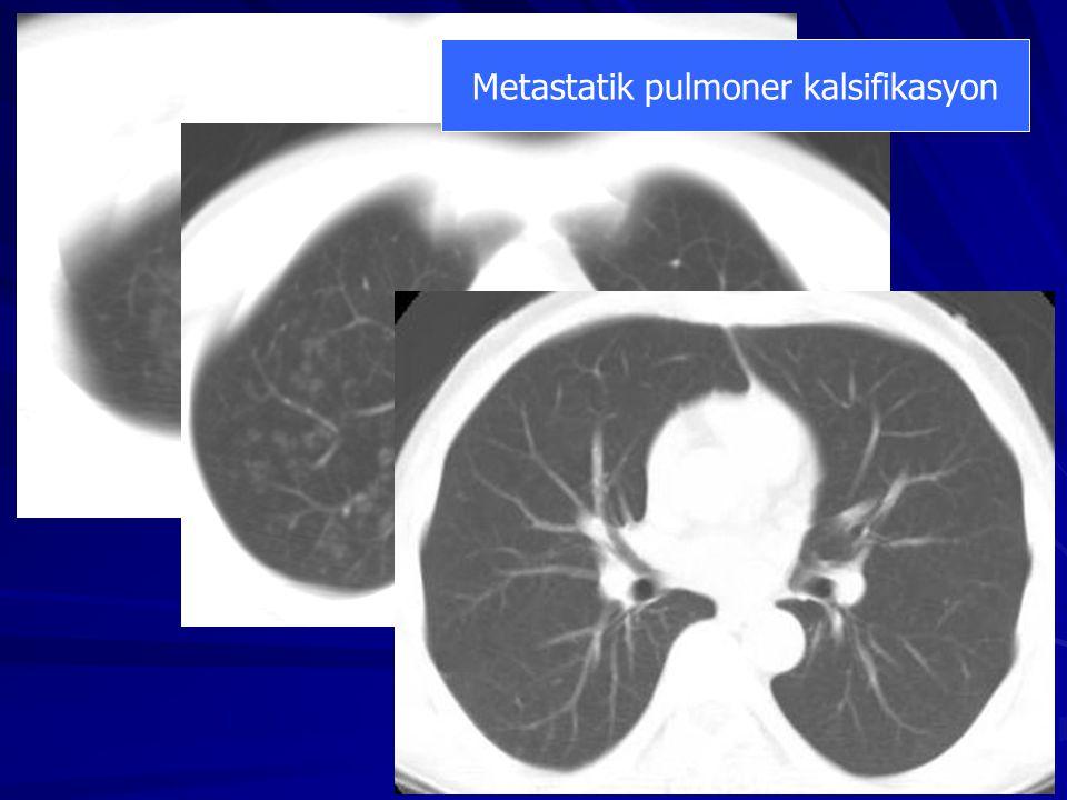 Metastatik pulmoner kalsifikasyon