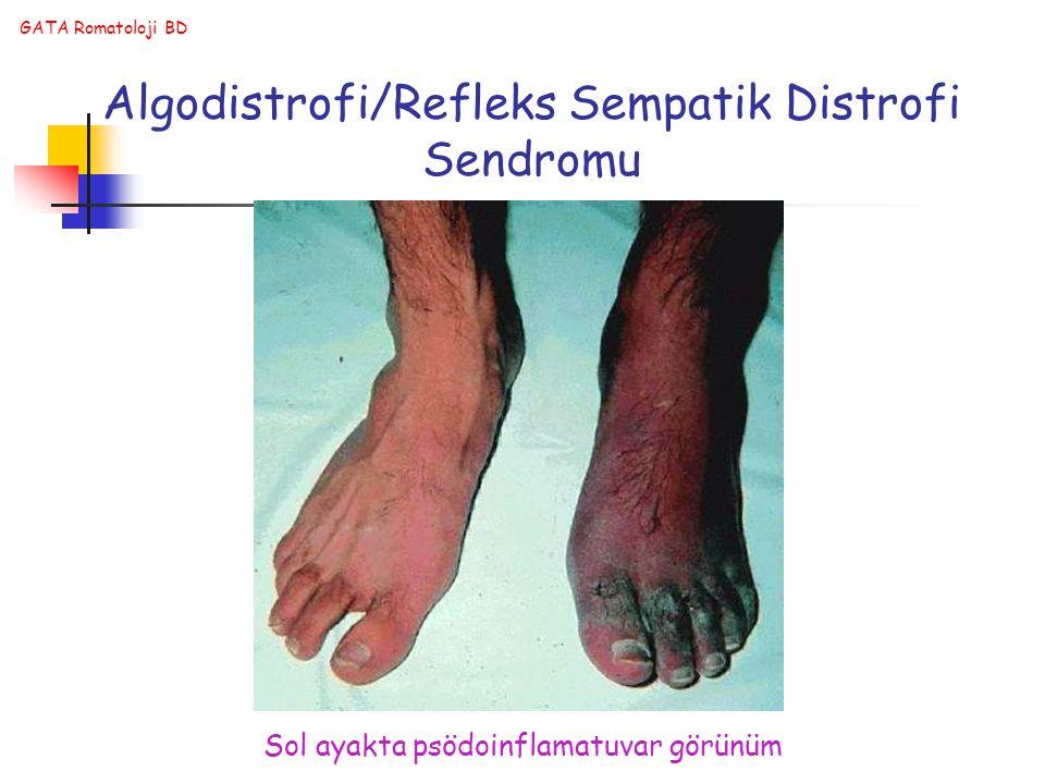 GATA Romatoloji BD Algodistrofi/Refleks Sempatik Distrofi Sendromu Sol ayakta psödoinflamatuvar görünüm