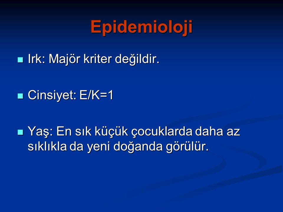 Epidemioloji Irk: Majör kriter değildir.Irk: Majör kriter değildir.