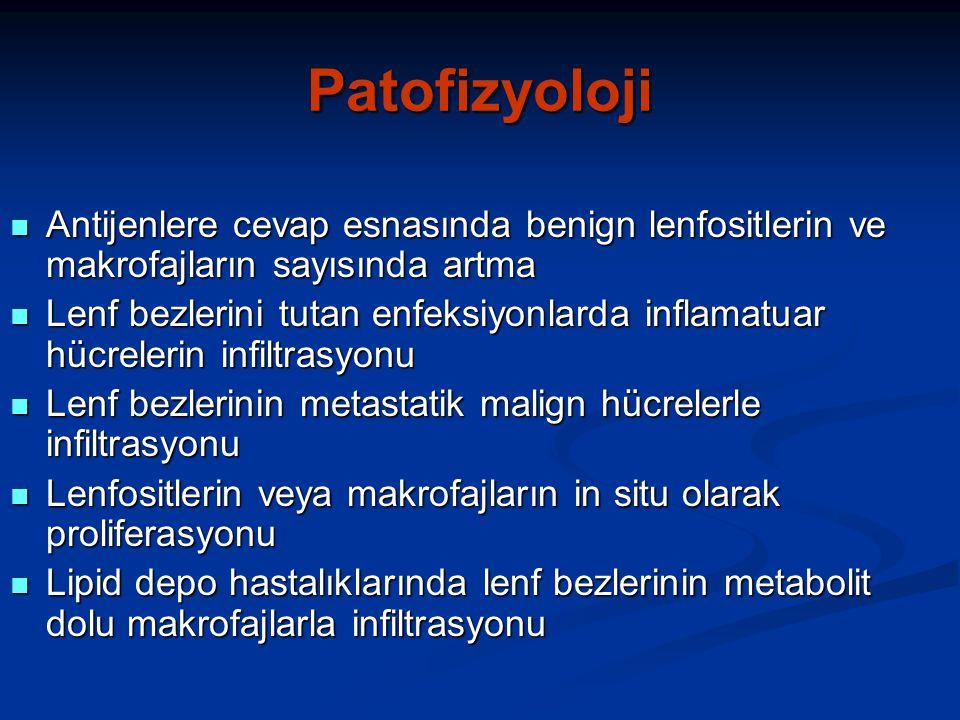 Patofizyoloji Antijenlere cevap esnasında benign lenfositlerin ve makrofajların sayısında artma Antijenlere cevap esnasında benign lenfositlerin ve makrofajların sayısında artma Lenf bezlerini tutan enfeksiyonlarda inflamatuar hücrelerin infiltrasyonu Lenf bezlerini tutan enfeksiyonlarda inflamatuar hücrelerin infiltrasyonu Lenf bezlerinin metastatik malign hücrelerle infiltrasyonu Lenf bezlerinin metastatik malign hücrelerle infiltrasyonu Lenfositlerin veya makrofajların in situ olarak proliferasyonu Lenfositlerin veya makrofajların in situ olarak proliferasyonu Lipid depo hastalıklarında lenf bezlerinin metabolit dolu makrofajlarla infiltrasyonu Lipid depo hastalıklarında lenf bezlerinin metabolit dolu makrofajlarla infiltrasyonu