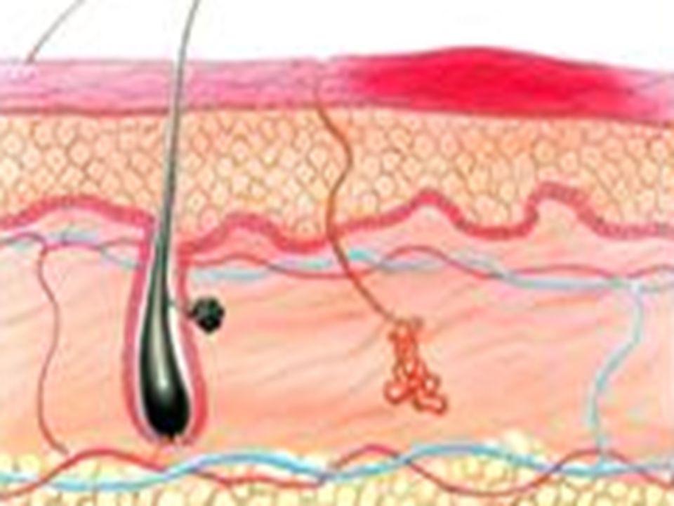 Ağrılıdır Bölgede şişlik olur Deride ve derinin yüzeyinde kızarıklık Yaklaşık48saat içinde iyileşir 1.DERECE YANIKLAR