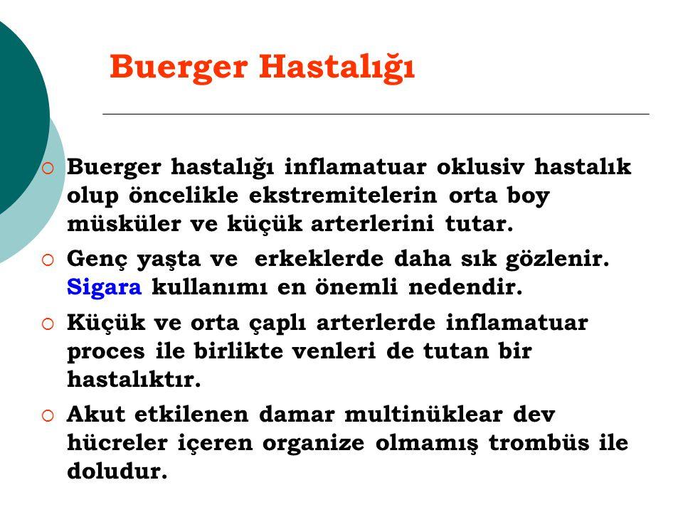 Buerger Hastalığı  Buerger hastalığı inflamatuar oklusiv hastalık olup öncelikle ekstremitelerin orta boy müsküler ve küçük arterlerini tutar.  Genç