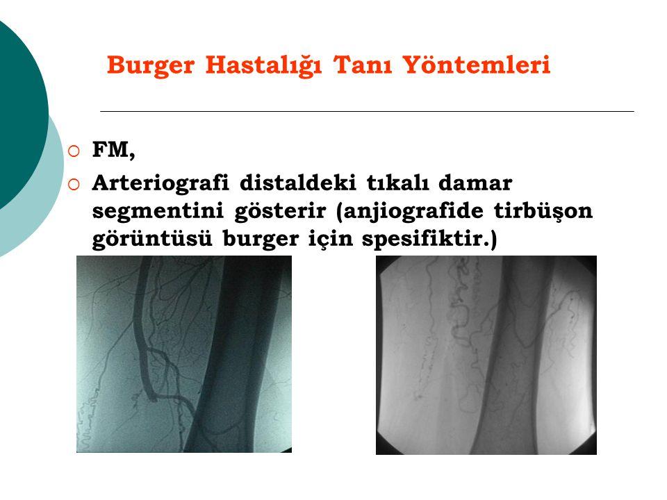 Burger Hastalığı Tanı Yöntemleri  FM,  Arteriografi distaldeki tıkalı damar segmentini gösterir (anjiografide tirbüşon görüntüsü burger için spesifi