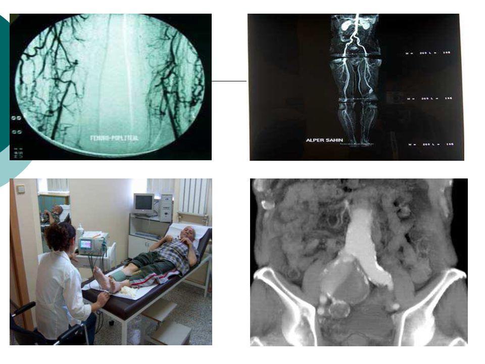 Tedavi 1-Cerrahi tedavi:Anatomik ve veya extraanatomik bypasslar 2- Medikal tedavi:iloprost, kloplodegral, silastazol, asetil salik asit 3-Yaşam tarzı değişiklikleri:sigara bırakılması, diyet, spor