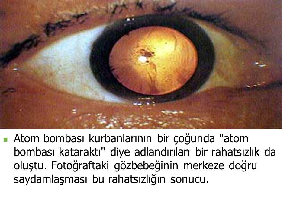 Atom bombası kurbanlarının bir çoğunda atom bombası kataraktı diye adlandırılan bir rahatsızlık da oluştu.