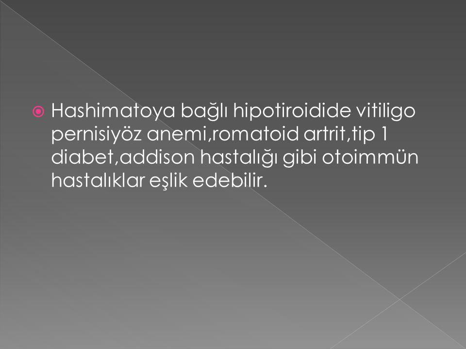  Hashimatoya bağlı hipotiroidide vitiligo pernisiyöz anemi,romatoid artrit,tip 1 diabet,addison hastalığı gibi otoimmün hastalıklar eşlik edebilir.