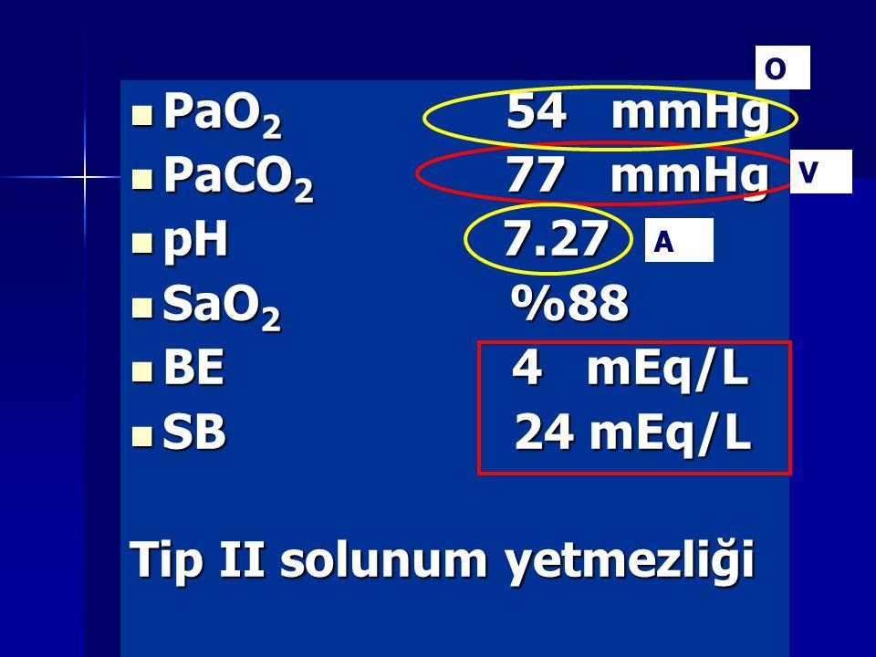 PaO 2 54 mmHg PaO 2 54 mmHg PaCO 2 77 mmHg PaCO 2 77 mmHg pH 7.27 pH 7.27 SaO 2 %88 SaO 2 %88 BE 4 mEq/L BE 4 mEq/L SB 24 mEq/L SB 24 mEq/L Tip II solunum yetmezliği V A O