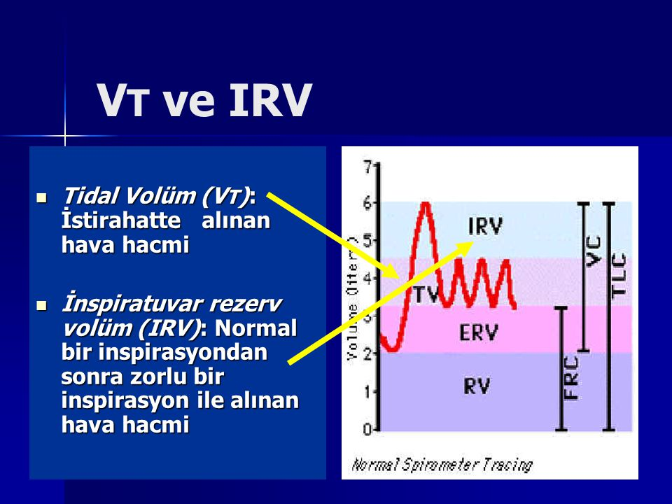 V T ve IRV Tidal Volüm (V T ): İstirahatte alınan hava hacmi Tidal Volüm (V T ): İstirahatte alınan hava hacmi İnspiratuvar rezerv volüm (IRV): Normal bir inspirasyondan sonra zorlu bir inspirasyon ile alınan hava hacmi İnspiratuvar rezerv volüm (IRV): Normal bir inspirasyondan sonra zorlu bir inspirasyon ile alınan hava hacmi