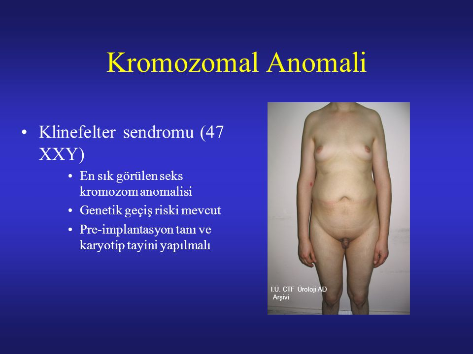 Kromozomal Anomali Klinefelter sendromu (47 XXY) En sık görülen seks kromozom anomalisi Genetik geçiş riski mevcut Pre-implantasyon tanı ve karyotip t