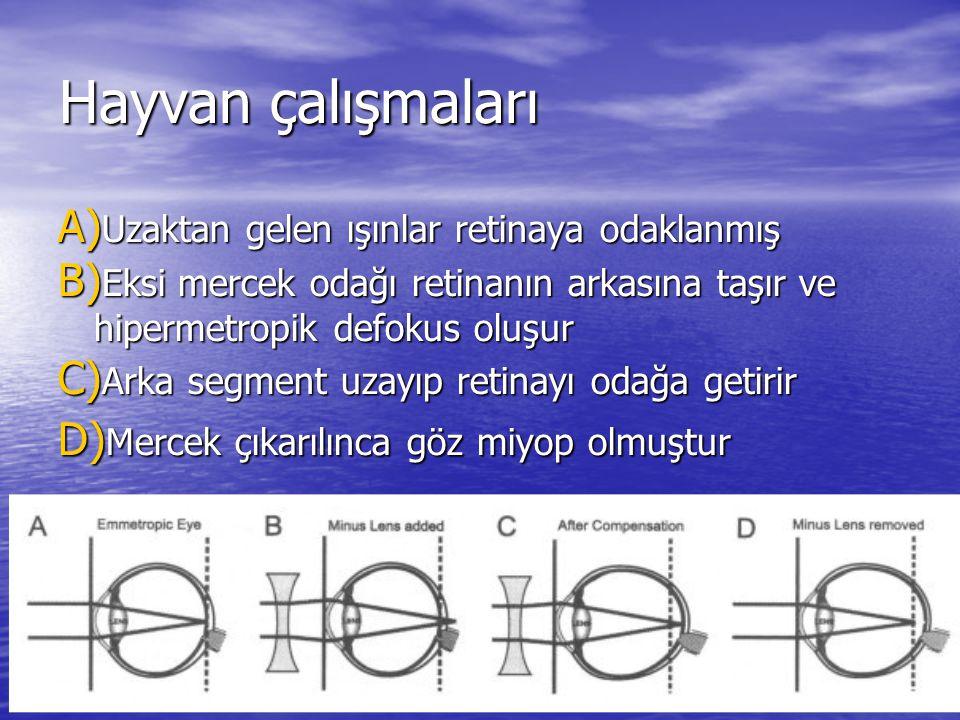 Hayvan çalışmaları A) Uzaktan gelen ışınlar retinaya odaklanmış B) Eksi mercek odağı retinanın arkasına taşır ve hipermetropik defokus oluşur C) Arka