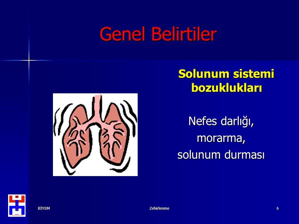 BİYEMZehirlenme6 Genel Belirtiler Solunum sistemi bozuklukları Solunum sistemi bozuklukları Nefes darlığı, morarma, solunum durması