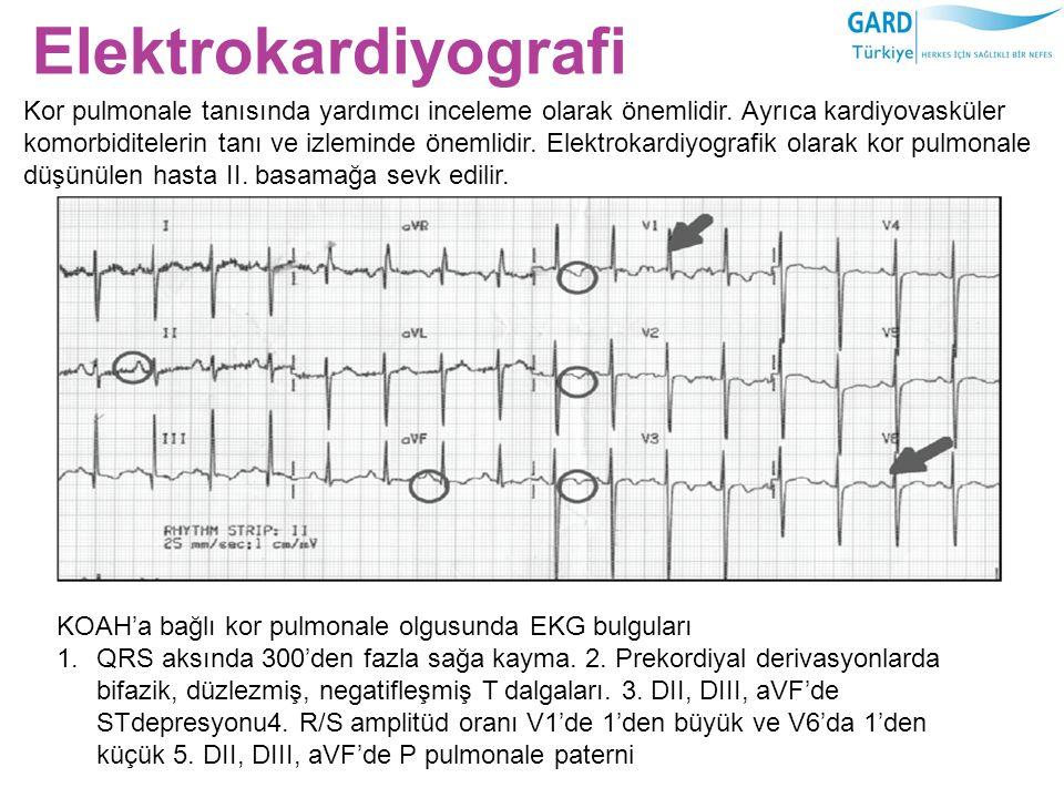 Elektrokardiyografi KOAH'a bağlı kor pulmonale olgusunda EKG bulguları 1.QRS aksında 300'den fazla sağa kayma. 2. Prekordiyal derivasyonlarda bifazik,