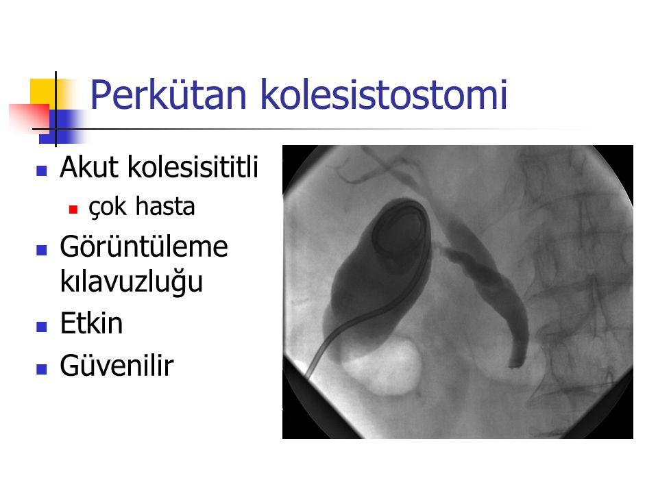 Perkütan kolesistostomi (Teknik II) Kolesistografi ilk kateter yerleştirildiğinde yapılmaz sepsis