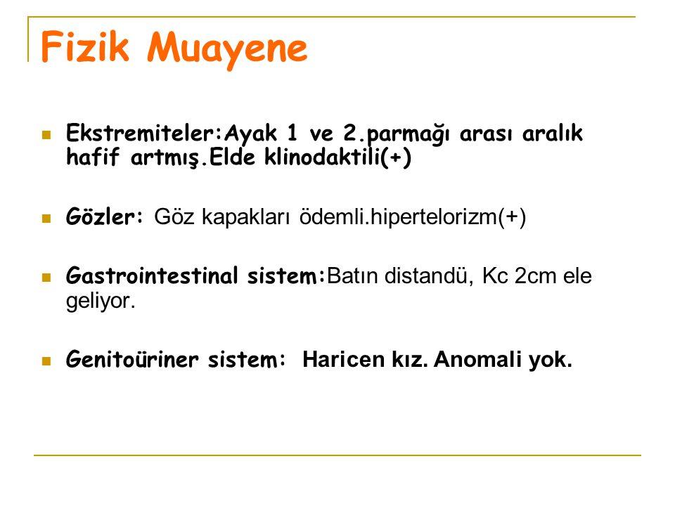 Fizik Muayene Ekstremiteler:Ayak 1 ve 2.parmağı arası aralık hafif artmış.Elde klinodaktili(+) Gözler: Göz kapakları ödemli.hipertelorizm(+) Gastroint