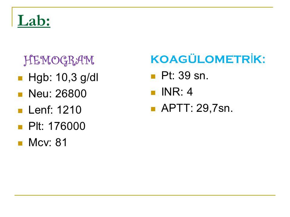 Lab: HEMOGRAM Hgb: 10,3 g/dl Neu: 26800 Lenf: 1210 Plt: 176000 Mcv: 81 KOAGÜLOMETR İ K: Pt: 39 sn. INR: 4 APTT: 29,7sn.