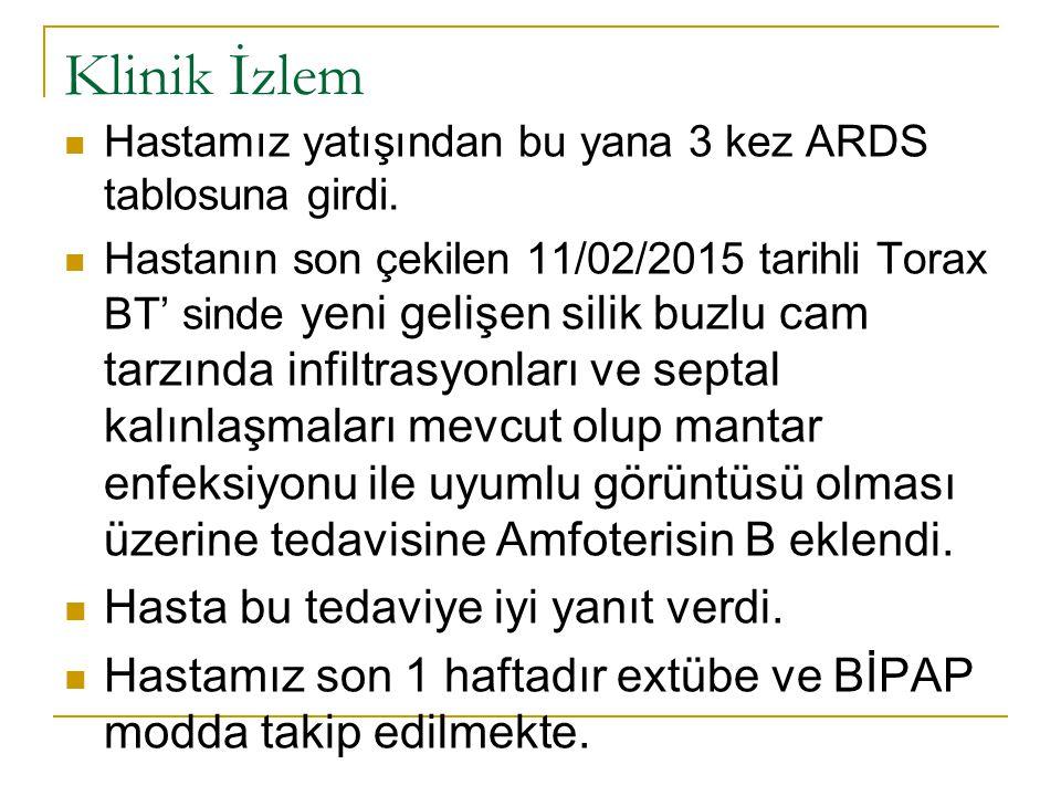 Klinik İzlem Hastamız yatışından bu yana 3 kez ARDS tablosuna girdi. Hastanın son çekilen 11/02/2015 tarihli Torax BT' sinde yeni gelişen silik buzlu