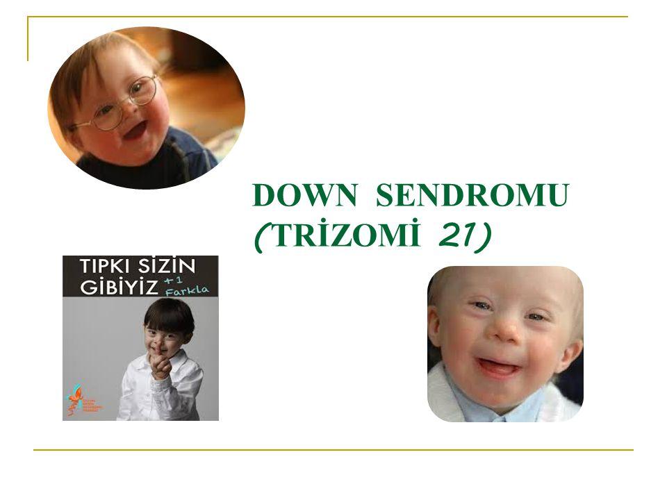 DOWN SENDROMU ( TRİZOMİ 21)