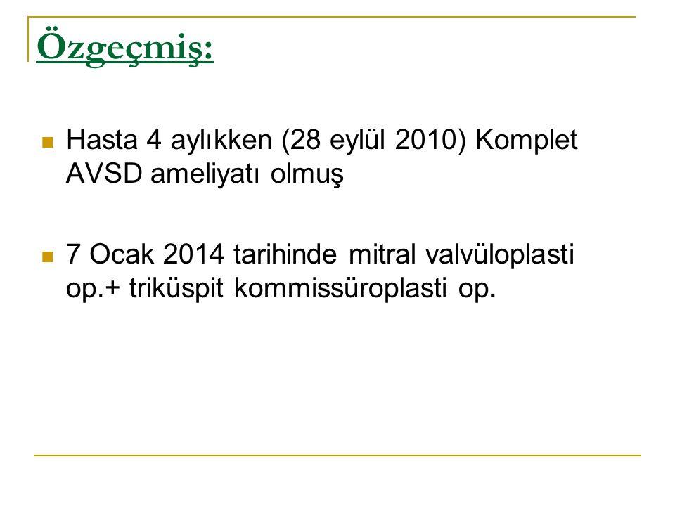Özgeçmiş: Hasta 4 aylıkken (28 eylül 2010) Komplet AVSD ameliyatı olmuş 7 Ocak 2014 tarihinde mitral valvüloplasti op.+ triküspit kommissüroplasti op.