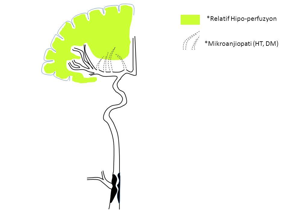 *Relatif Hipo-perfuzyon *Mikroanjiopati (HT, DM)