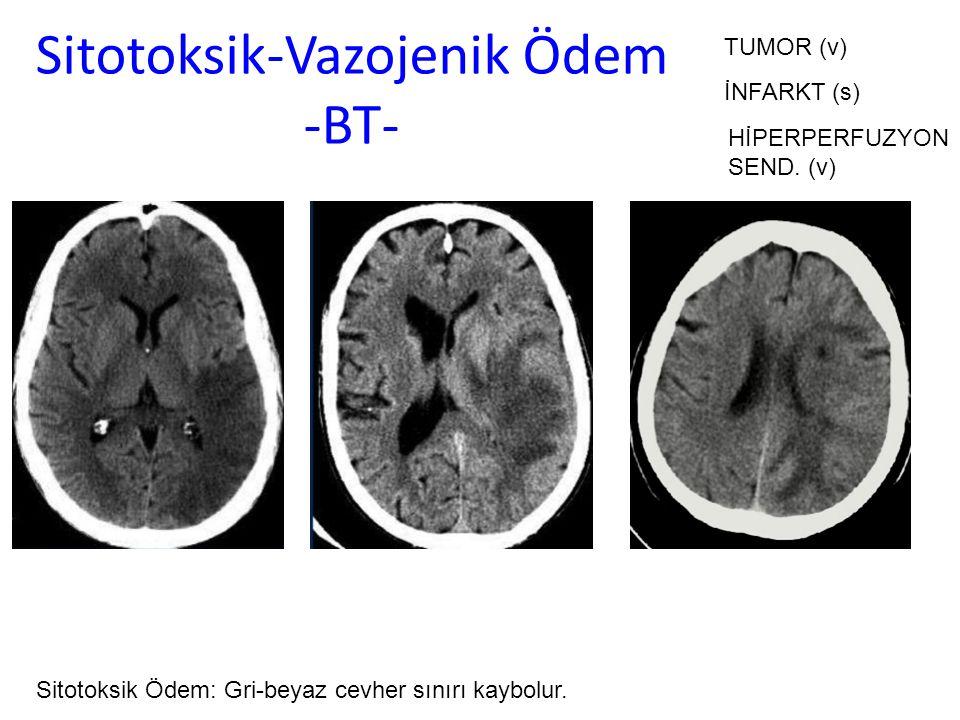 Sitotoksik-Vazojenik Ödem -BT- Sitotoksik Ödem: Gri-beyaz cevher sınırı kaybolur. İNFARKT (s) TUMOR (v) HİPERPERFUZYON SEND. (v)