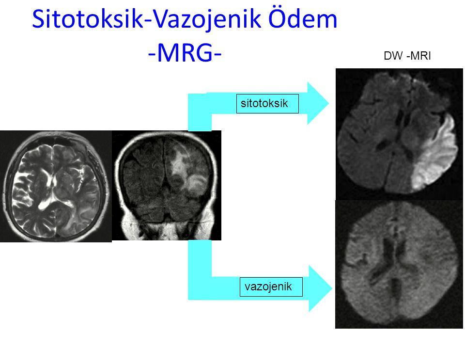 Sitotoksik-Vazojenik Ödem -MRG- sitotoksik vazojenik DW -MRI