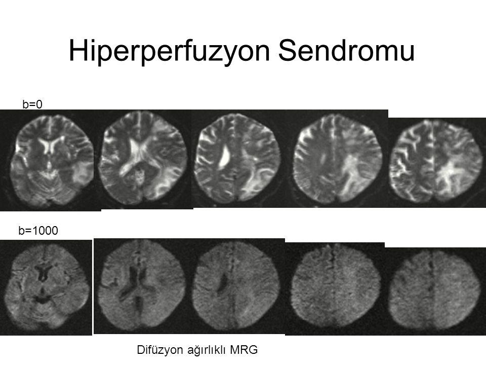 Difüzyon ağırlıklı MRG b=0 b=1000 Hiperperfuzyon Sendromu