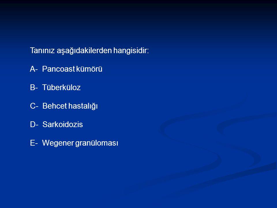 Tanınız aşağıdakilerden hangisidir: A- Pancoast kümörü B- Tüberküloz C- Behcet hastalığı D- Sarkoidozis E- Wegener granüloması