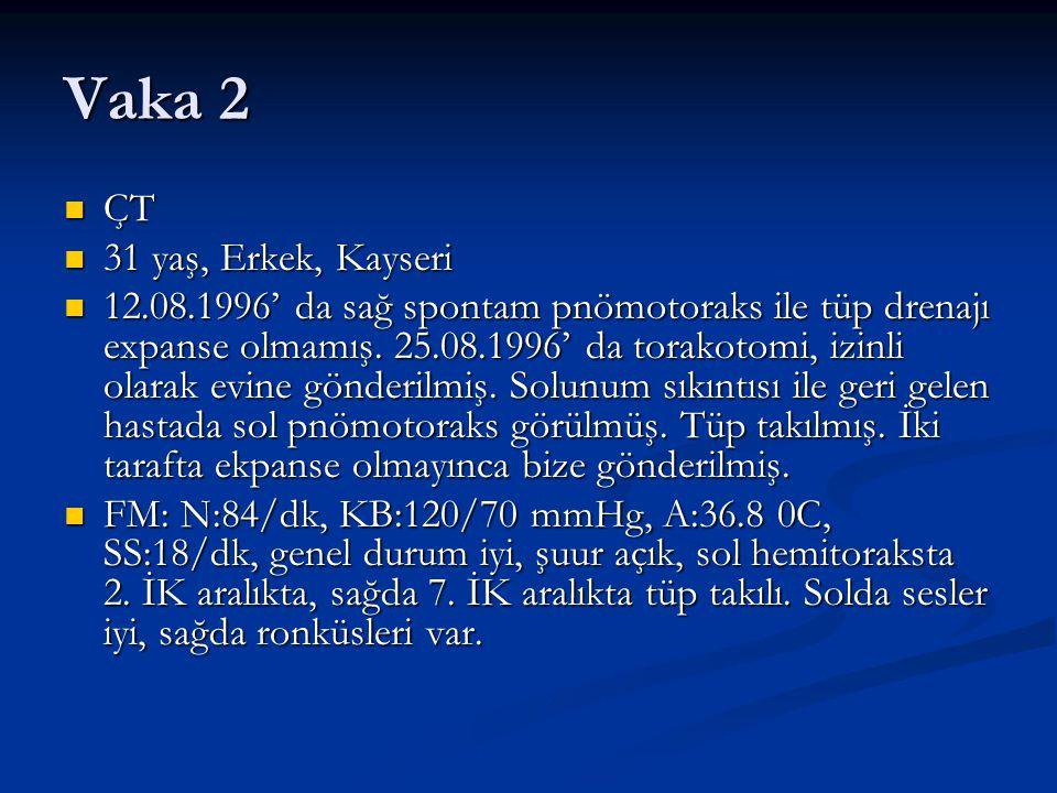 Vaka 2 ÇT ÇT 31 yaş, Erkek, Kayseri 31 yaş, Erkek, Kayseri 12.08.1996' da sağ spontam pnömotoraks ile tüp drenajı expanse olmamış. 25.08.1996' da tora