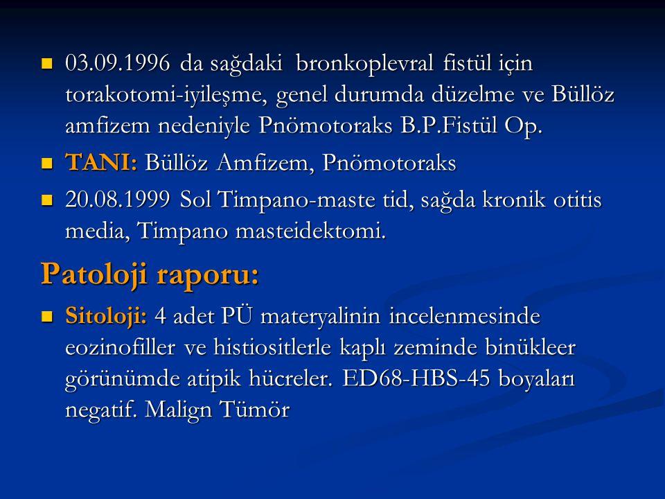 03.09.1996 da sağdaki bronkoplevral fistül için torakotomi-iyileşme, genel durumda düzelme ve Büllöz amfizem nedeniyle Pnömotoraks B.P.Fistül Op. 03.0