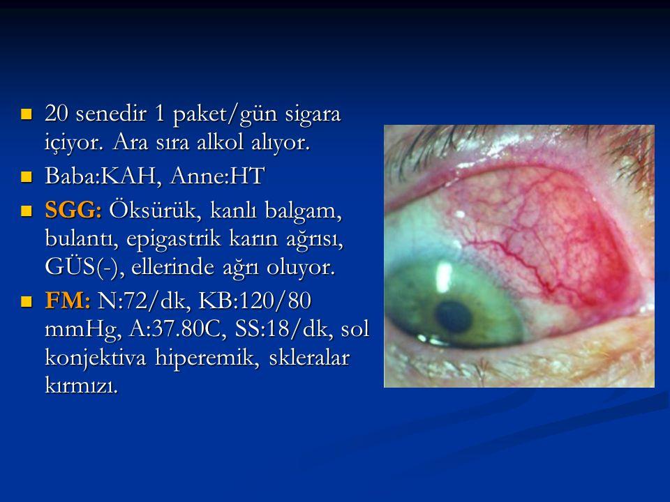 Hb:%12.9 gr, BK: 10600/mm3, Sedim:80 mm/saat, PY:%10 eozinofili, Nöt:560, Lenfo:%30, BUN:%25 mg, Kreatinin:%0.9, Kolestrol, KFT, Ca++,P--: Normal, T.Pro:%7 gr, Alb:%4 gr, kan kültürü (-), ARB(-), Hb:%12.9 gr, BK: 10600/mm3, Sedim:80 mm/saat, PY:%10 eozinofili, Nöt:560, Lenfo:%30, BUN:%25 mg, Kreatinin:%0.9, Kolestrol, KFT, Ca++,P--: Normal, T.Pro:%7 gr, Alb:%4 gr, kan kültürü (-), ARB(-), İ.T: Pankoast tümörü, Akciğer Ca.