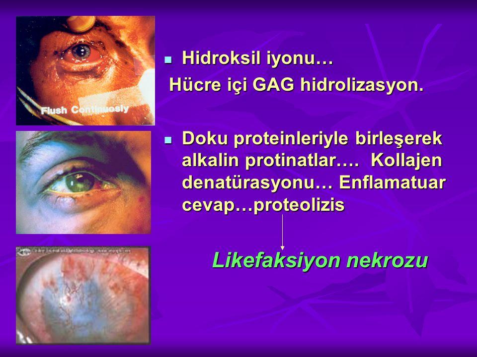 Hidroksil iyonu… Hidroksil iyonu… Hücre içi GAG hidrolizasyon.