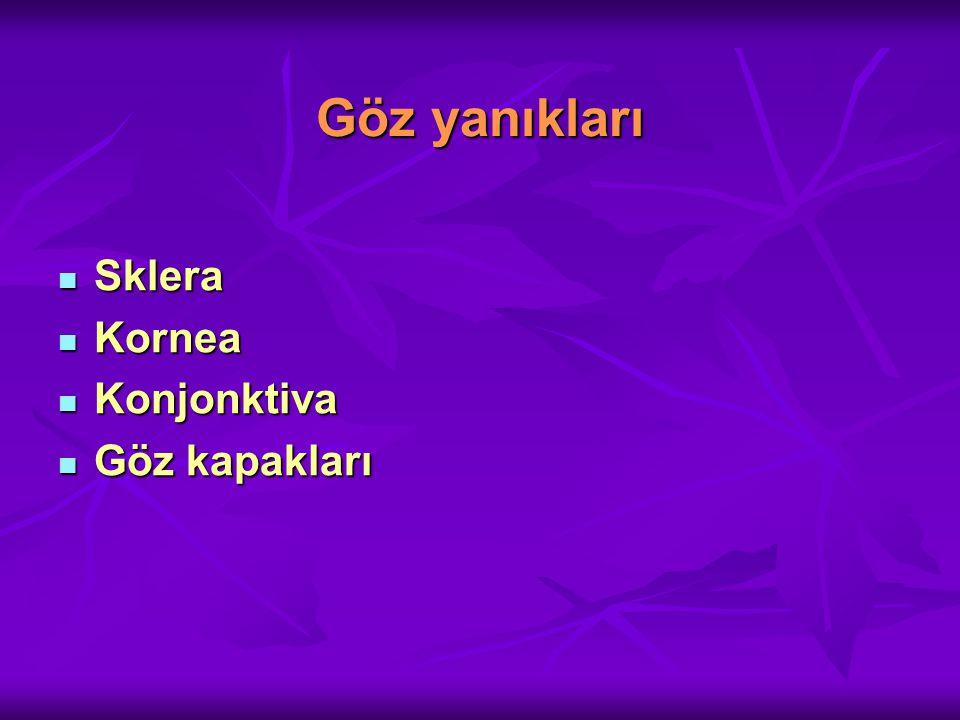 Amonyak maruziyeti Amonyak maruziyeti Evre 1 yanık Evre 1 yanık -Limbal veya konjonktival hasar yok.