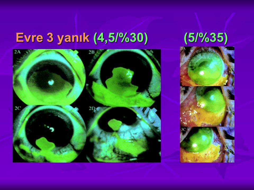 Evre 3 yanık (4,5/%30) (5/%35)