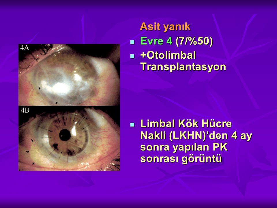 Asit yanık Asit yanık Evre 4 (7/%50) Evre 4 (7/%50) +Otolimbal Transplantasyon +Otolimbal Transplantasyon Limbal Kök Hücre Nakli (LKHN)'den 4 ay sonra yapılan PK sonrası görüntü Limbal Kök Hücre Nakli (LKHN)'den 4 ay sonra yapılan PK sonrası görüntü