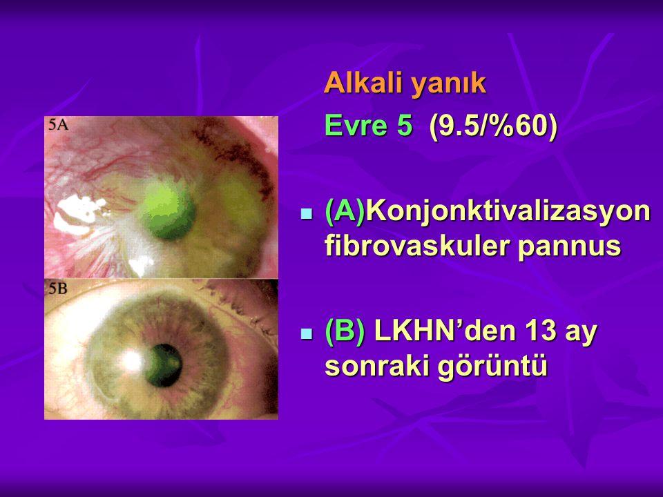 Alkali yanık Alkali yanık Evre 5 (9.5/%60) Evre 5 (9.5/%60) (A)Konjonktivalizasyon fibrovaskuler pannus (A)Konjonktivalizasyon fibrovaskuler pannus (B) LKHN'den 13 ay sonraki görüntü (B) LKHN'den 13 ay sonraki görüntü