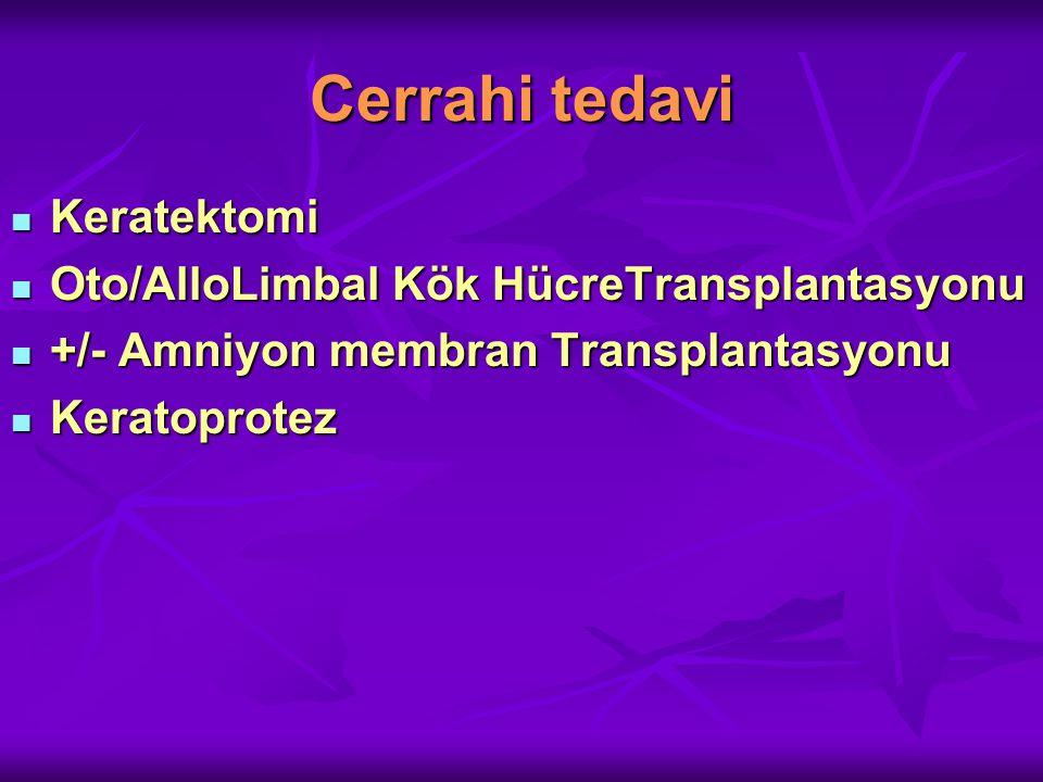 Cerrahi tedavi Keratektomi Keratektomi Oto/AlloLimbal Kök HücreTransplantasyonu Oto/AlloLimbal Kök HücreTransplantasyonu +/- Amniyon membran Transplantasyonu +/- Amniyon membran Transplantasyonu Keratoprotez Keratoprotez